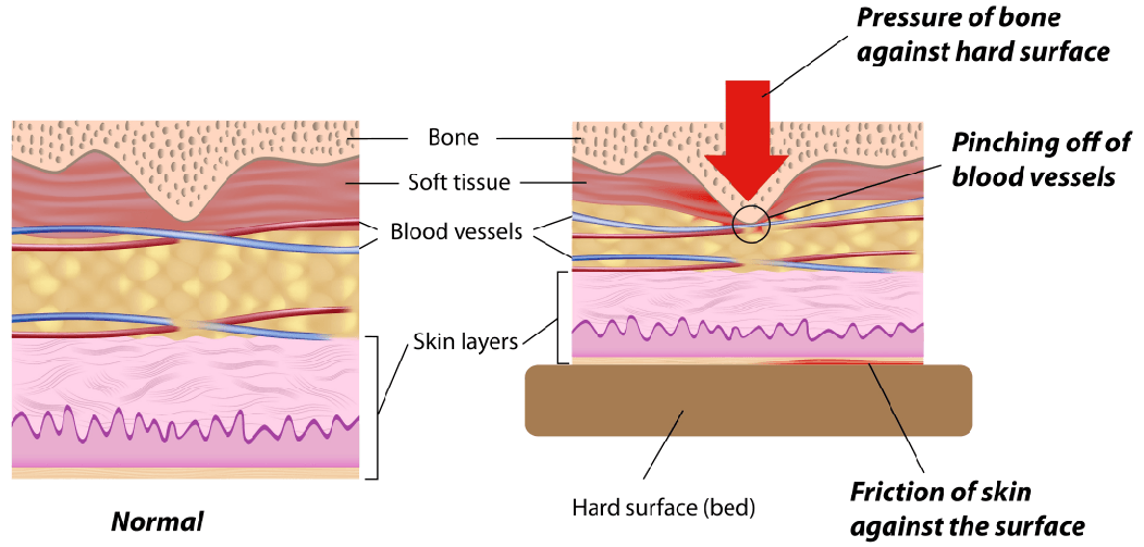 Pressure Sores are a sign of negligence
